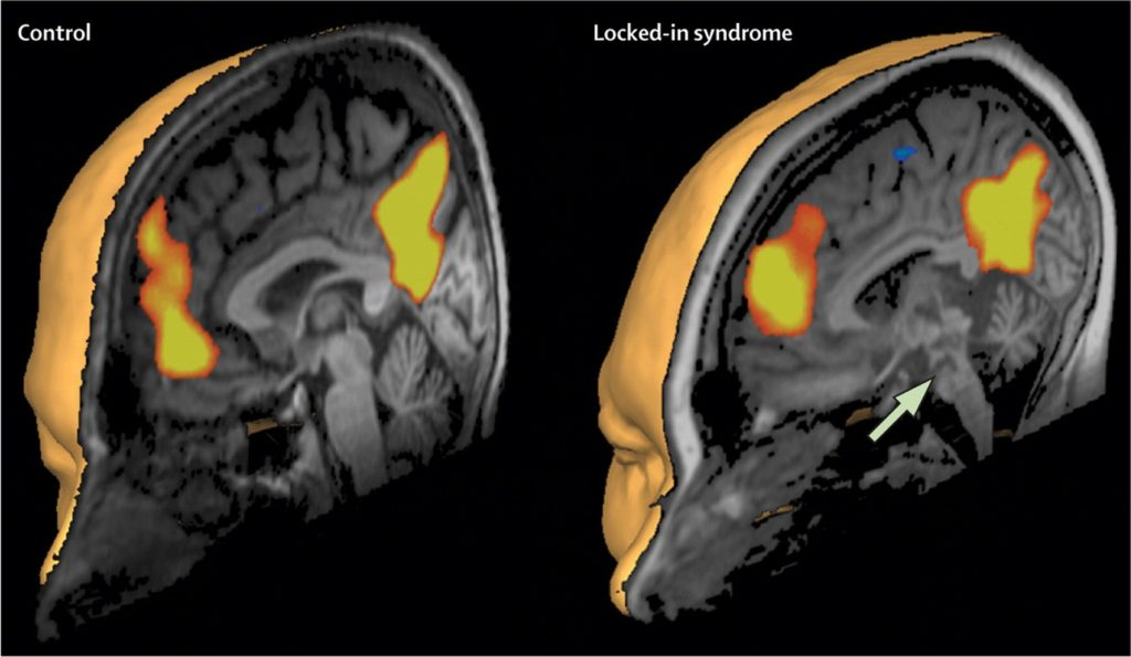 MRI Scans May Hold Answers For Locked-In Syndrome